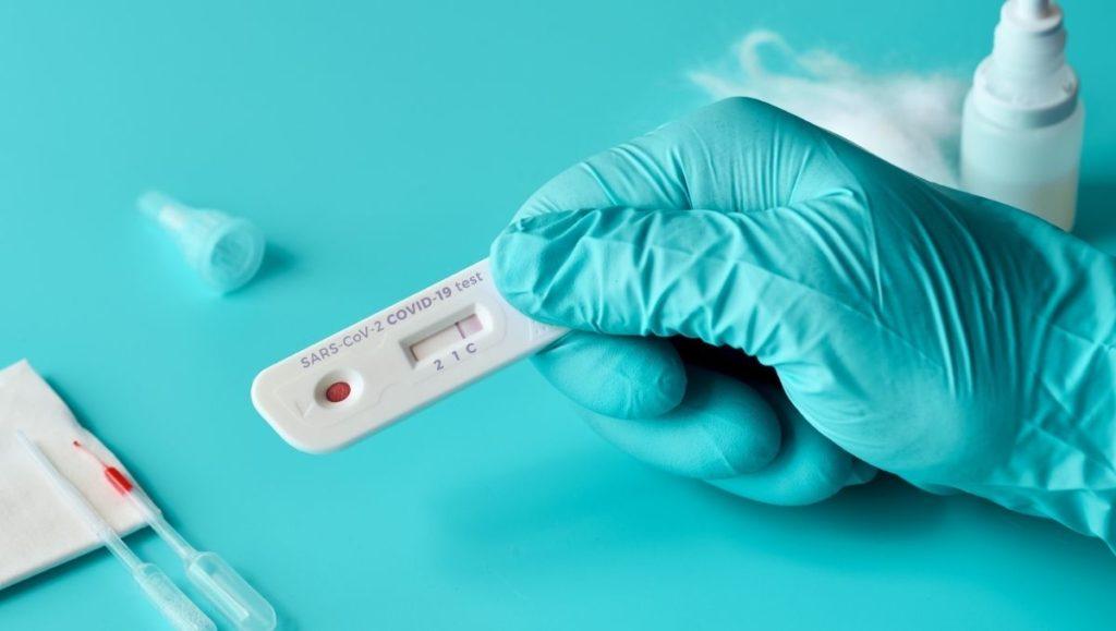 Examen ANTIGENO DEL VIRUS SARS-COV-2 para detectar Covid-19